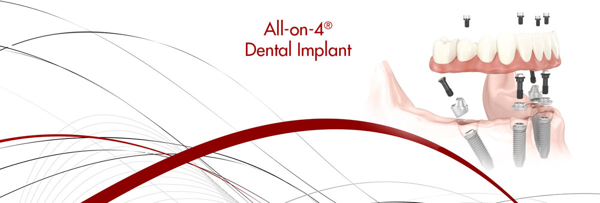 Newtown All-on-4 Dental Implants