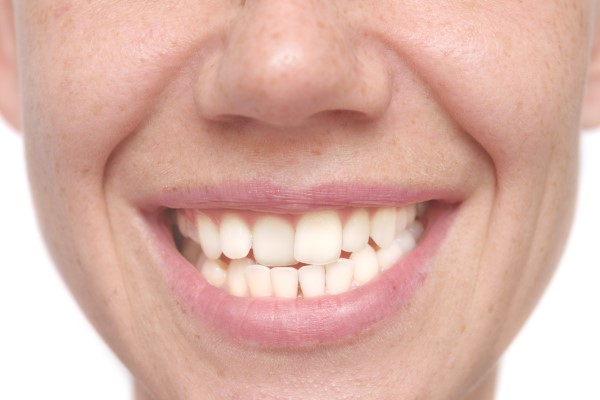 Cosmetic Dentistry Options For Teeth Straightening